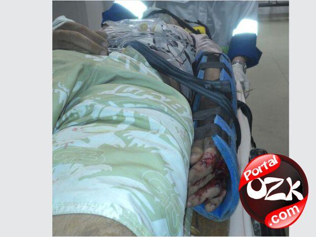 SJB_acidente-em-frente-a-casa-de-shows-br356-sao-joao-da-barra-rj1_pozk